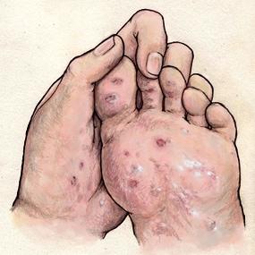 Syphilis-testing-near-me