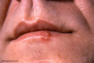 Oral-Herpes-std-symptoms