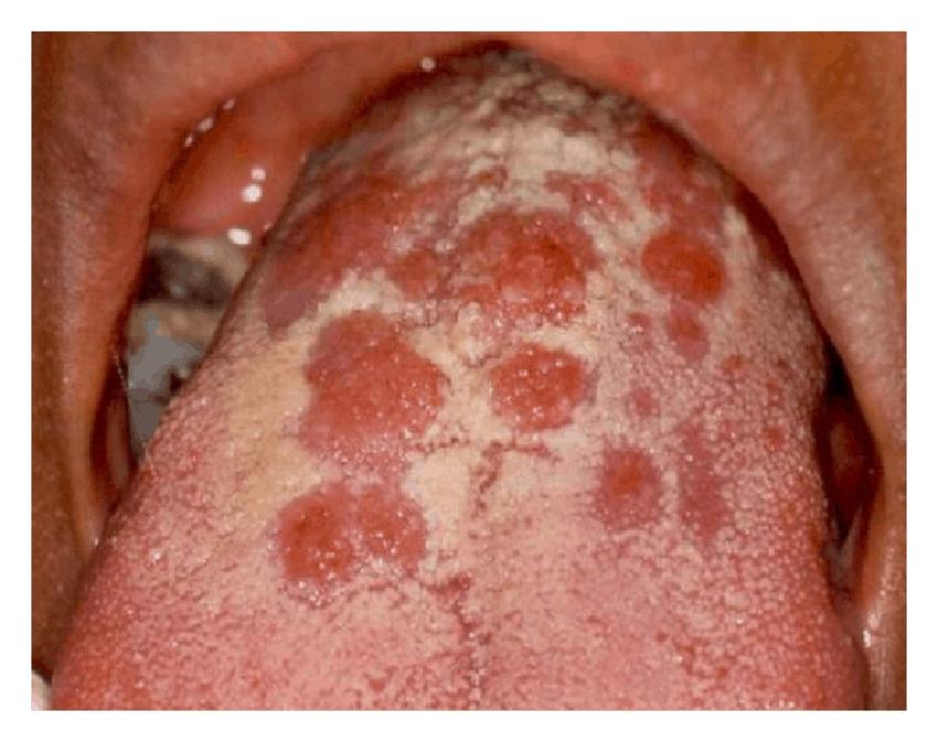 Rash mouth cunnilingus