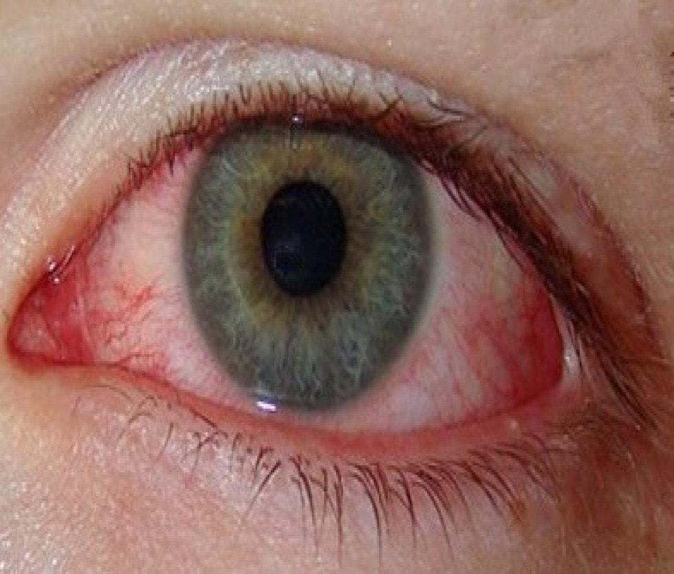 Chlamydia In The Eye chlamydial-conjuctivit...