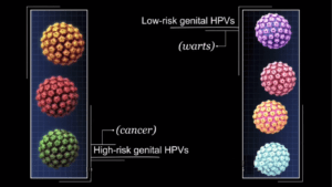 hpv-std-causing-cancer-oral-sex