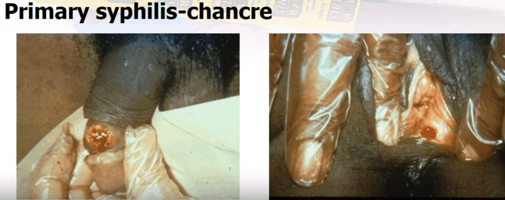 primary-syphillis-pictures-men-std