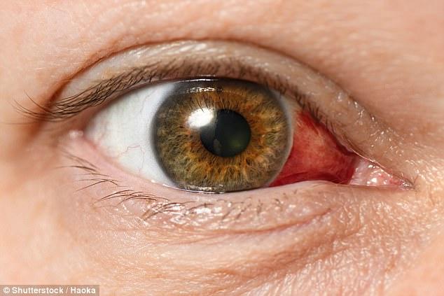ocular-syphilis-blindness