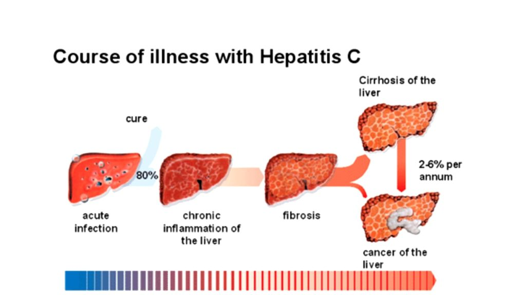 Hepatitis-c-cancer-chronic-stage