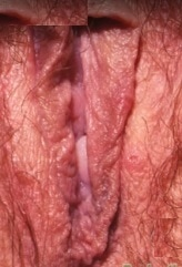 Primary-genital-herpes-vagina