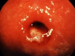asymptotic-gonorrhea-patient-cervix-vaginal-std