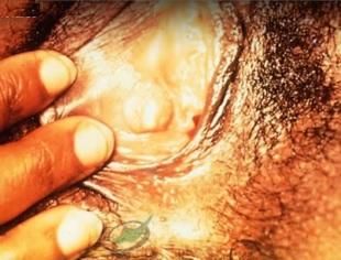 vaginal-std-gonorrhea