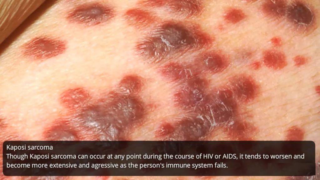 What does HIV rash looks like? - STD Testing Near Me